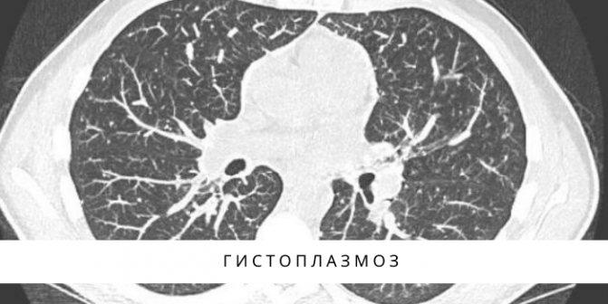 Интерстициальная пневмония: особенности, симптомы и формы, лечение