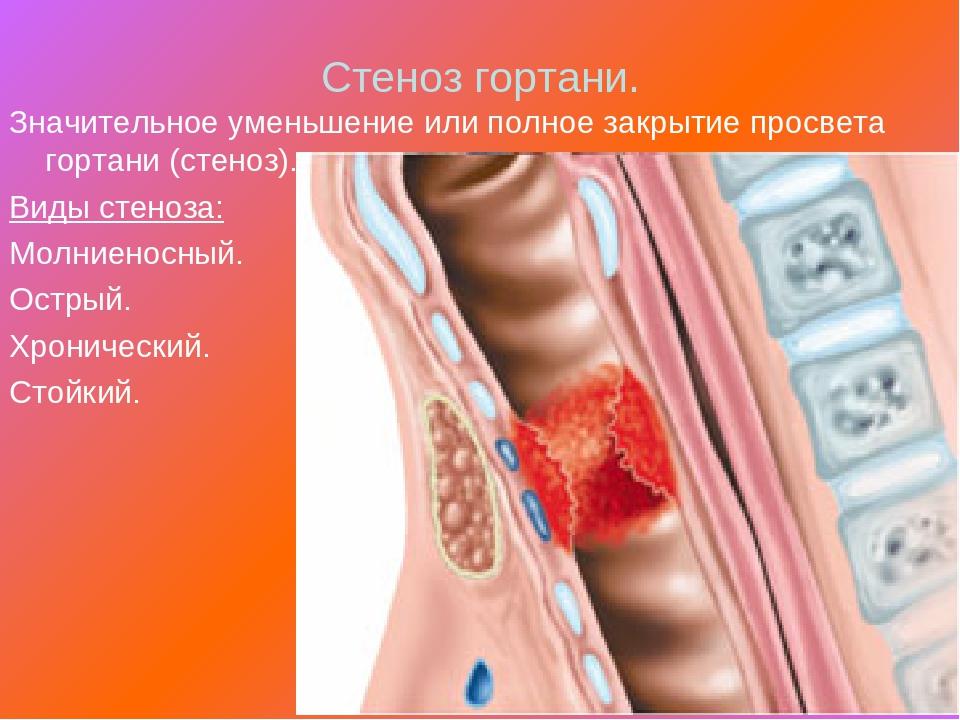 Что такое стеноз гортани: симптомы, лечение