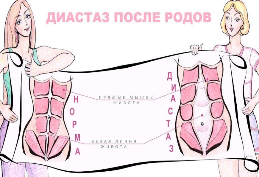 Диастаз прямых мышц живота после родов: признаки, лечение, фото