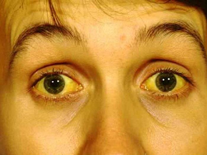 Желтуха: что это такое, причины, симптомы и лечение | мое здоровье желтуха: что это такое, причины, симптомы и лечение | мое здоровье