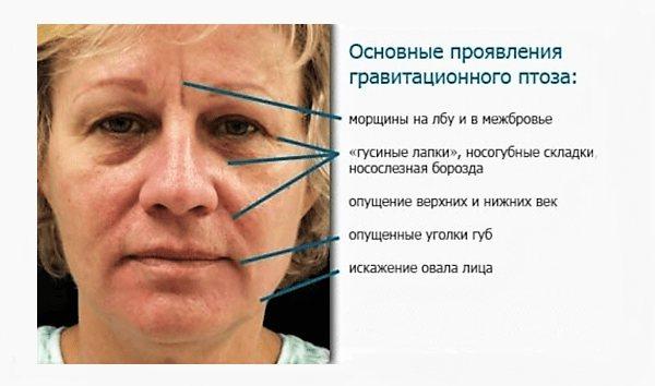 Что такое гравитационный птоз лица (гравитационный тип старения)?