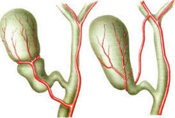 Деформация желчного пузыря - причины, симптомы, лечение