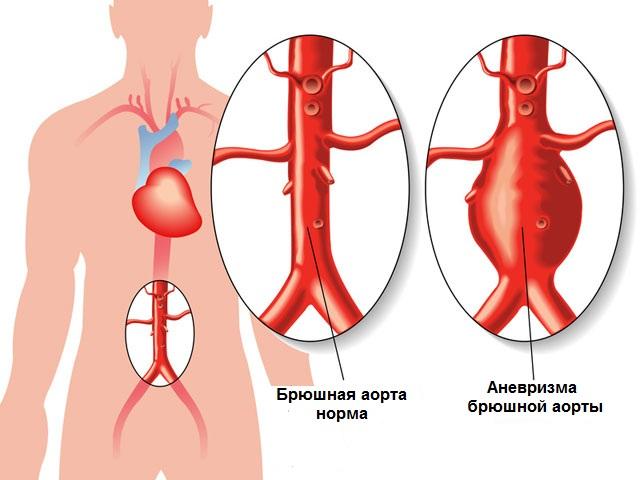 Aтеросклероз сонных артерий - причины и лечение