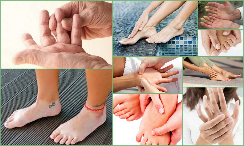 Парестезия - симптомы и лечение