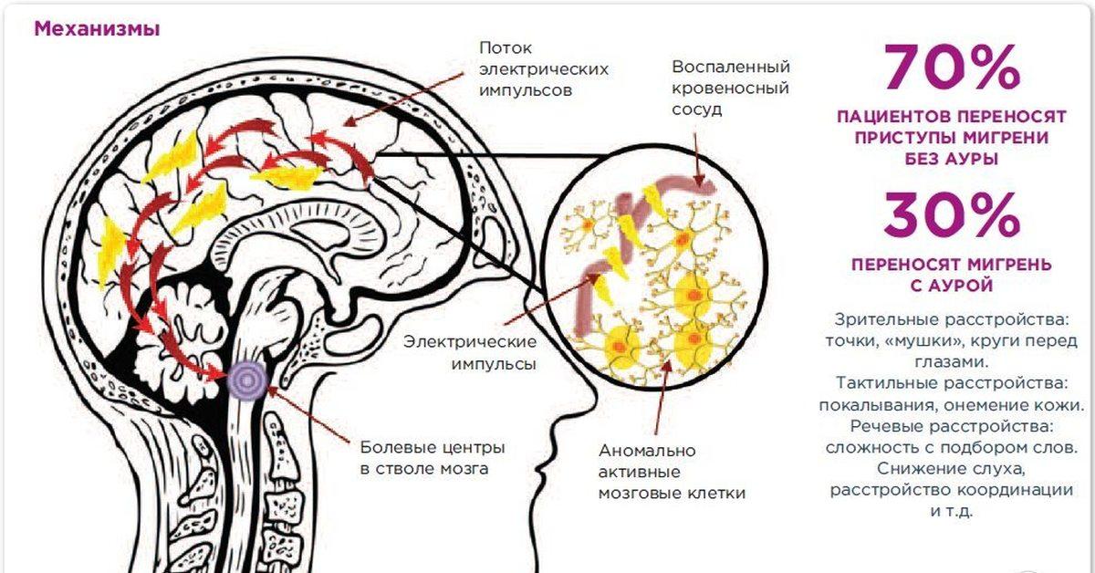 Мигрень с аурой: причины, симптомы и лечение болезни