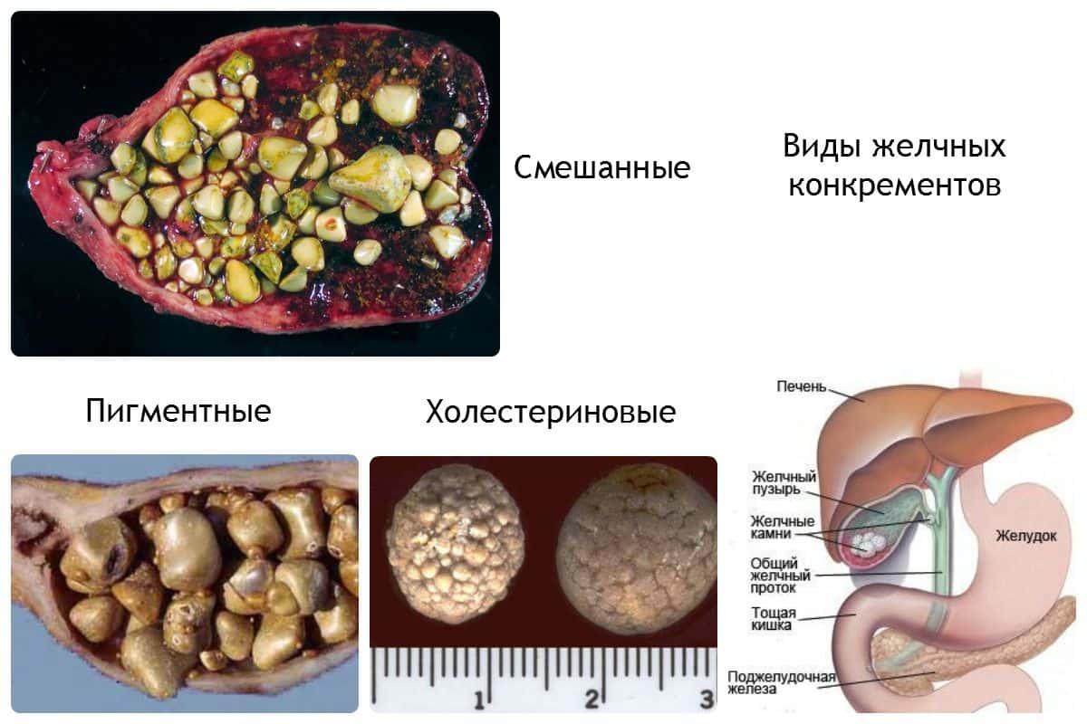 Камни в желчном пузыре — симптомы, признаки, причины