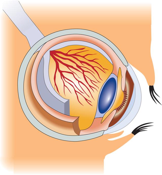Глаукома: что это такое, как лечить, операция, причины, симптомы