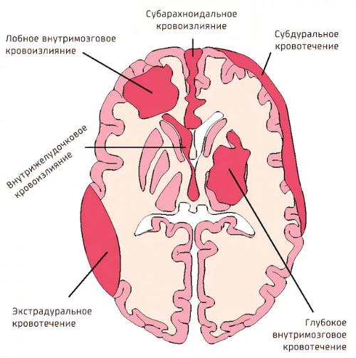 Кровоизлияние в мозг: причины и лечение - подробная информация