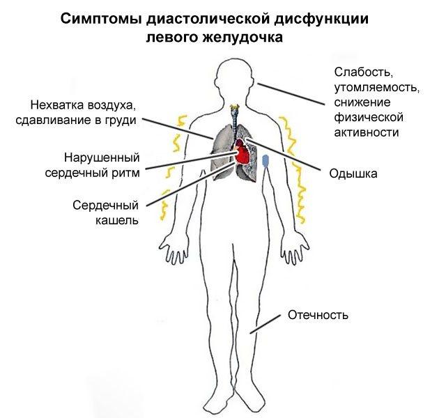 Диастолическая дисфункция левого желудочка 1 типа инвалидность — заболевания сердца