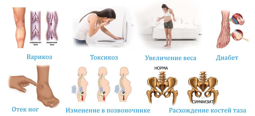 Беременность: трудно ходить и сидеть. что такое симфизит. медицинские аспекты беременности