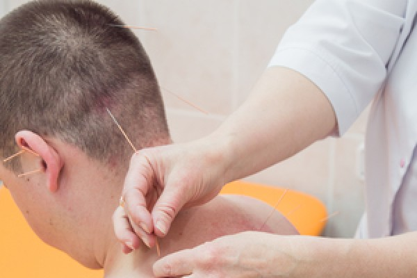 """Рефлексотерапия - лечение методом рефлексотерапии в клинике """"мосмед"""""""