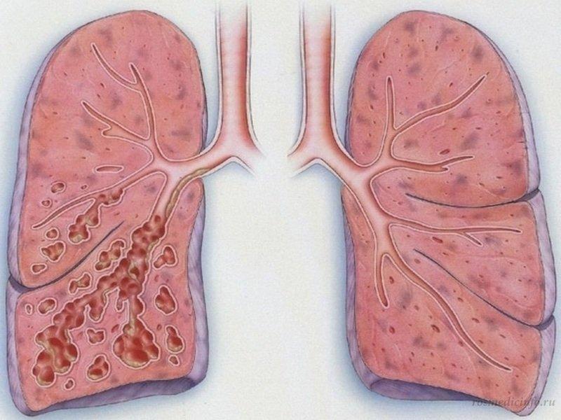 Пневмофиброз легких - лечение, симптомы, причины