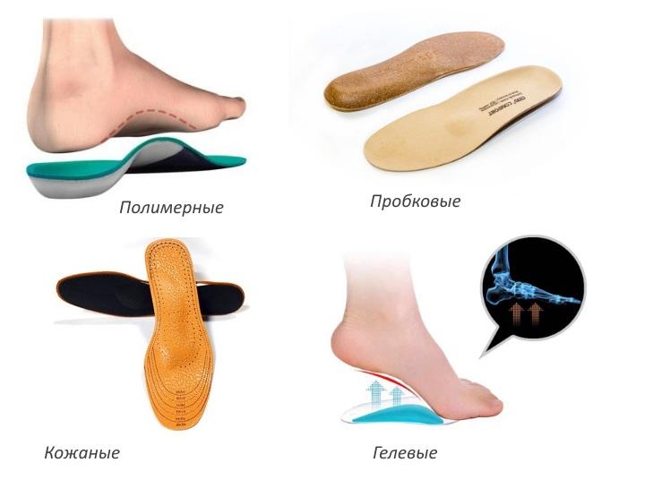 Индивидуальные ортопедические стельки, особенности применения