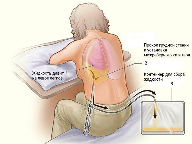 Гидроторакс легких — причины, признаки, диагностика, лечение, профилактика