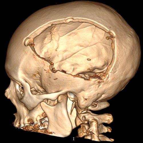 Трепанация черепа: что это за процедура и в каких случаях она необходима? восстановление и последствия после трепанации черепа