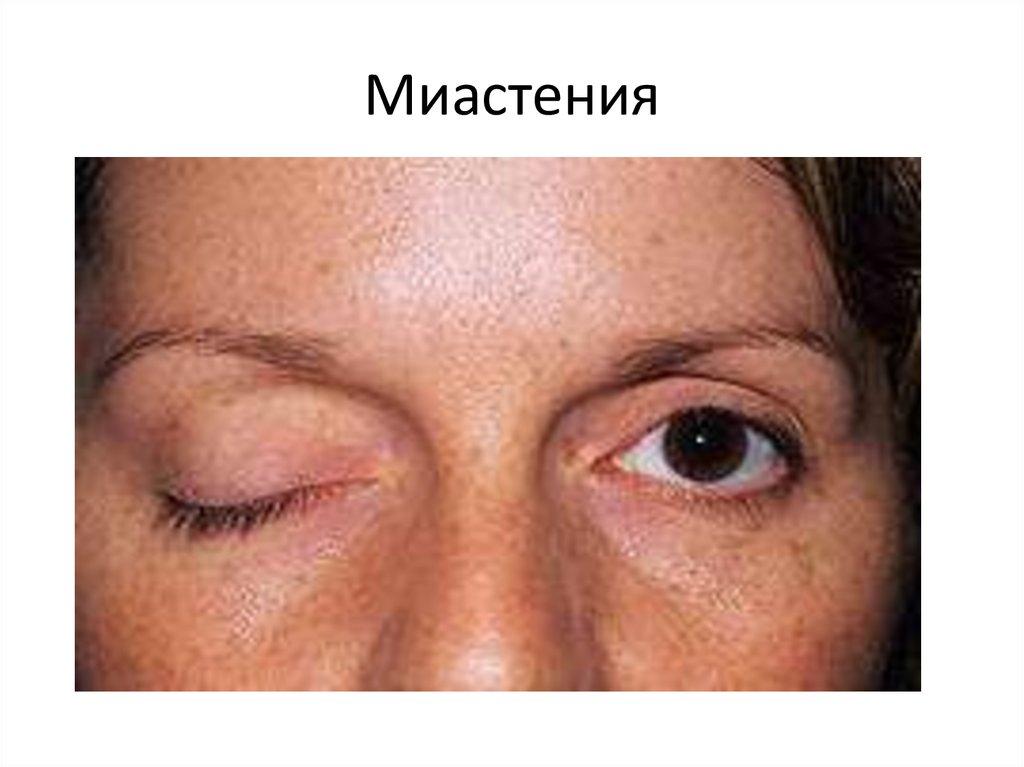Миастения: симптомы и признаки, причины возникновения, диагностика. лечение миастении в москве