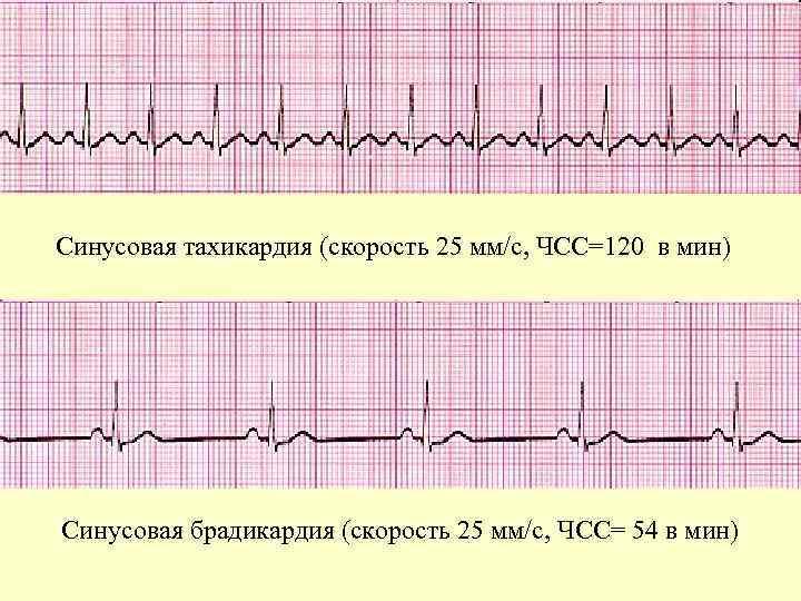 Синусовая брадикардия это - здоров.сердцем