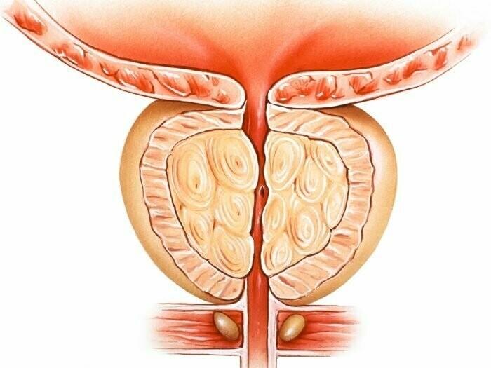Лечение аденомы простаты без операции: когда можно вылечить препаратами,как уменьшить опухоль медикаментозно и избавиться от нее | prostatitaid.ru