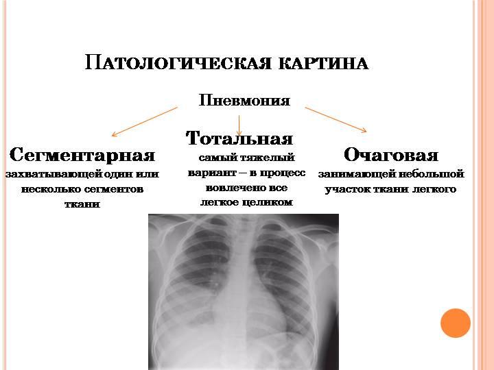 Полисегментарная пневмония у взрослых и детей: лечение