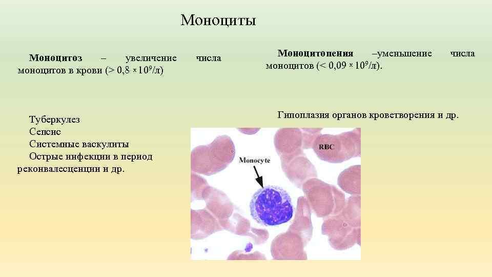 Моноциты понижены у взрослого. о чём это говорит? моноцитопения