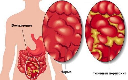 Перитонит. причины, симптомы, признаки, диагностика и лечение патологии :: polismed.com