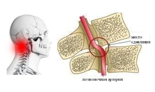 Цервикалгия и цервикокраниалгия: что это такое, симптомы и лечение
