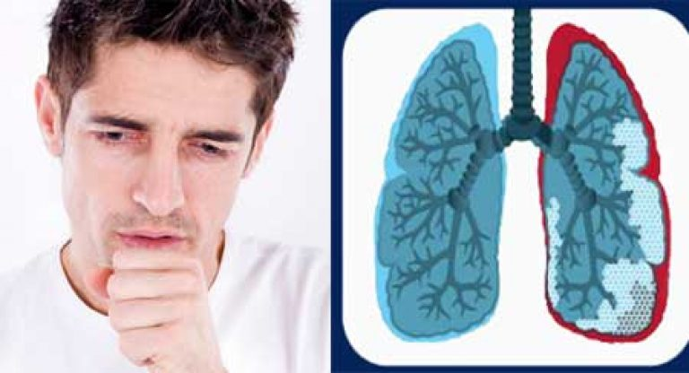 Фиброз легких: причины развития, лечение народными средствами