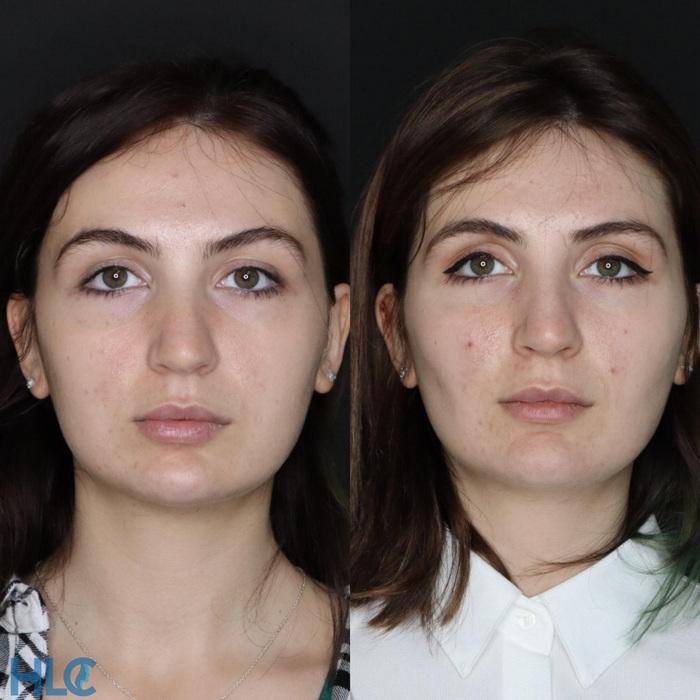 Что такое комки биша: плюсы и минусы их удаления. фото до и после операции - полонсил.ру - социальная сеть здоровья - медиаплатформа миртесен