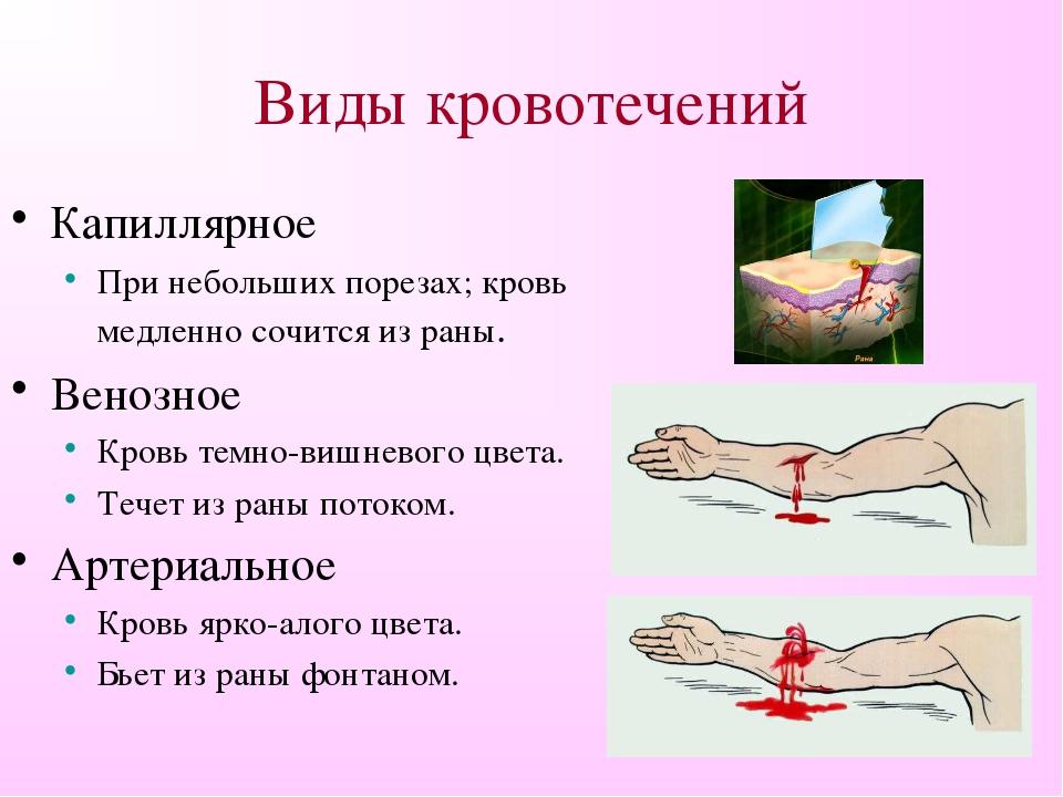 Паренхиматозное кровотечение: что это такое, при ранении, первая помощь, когда возникает, признаки, лечение