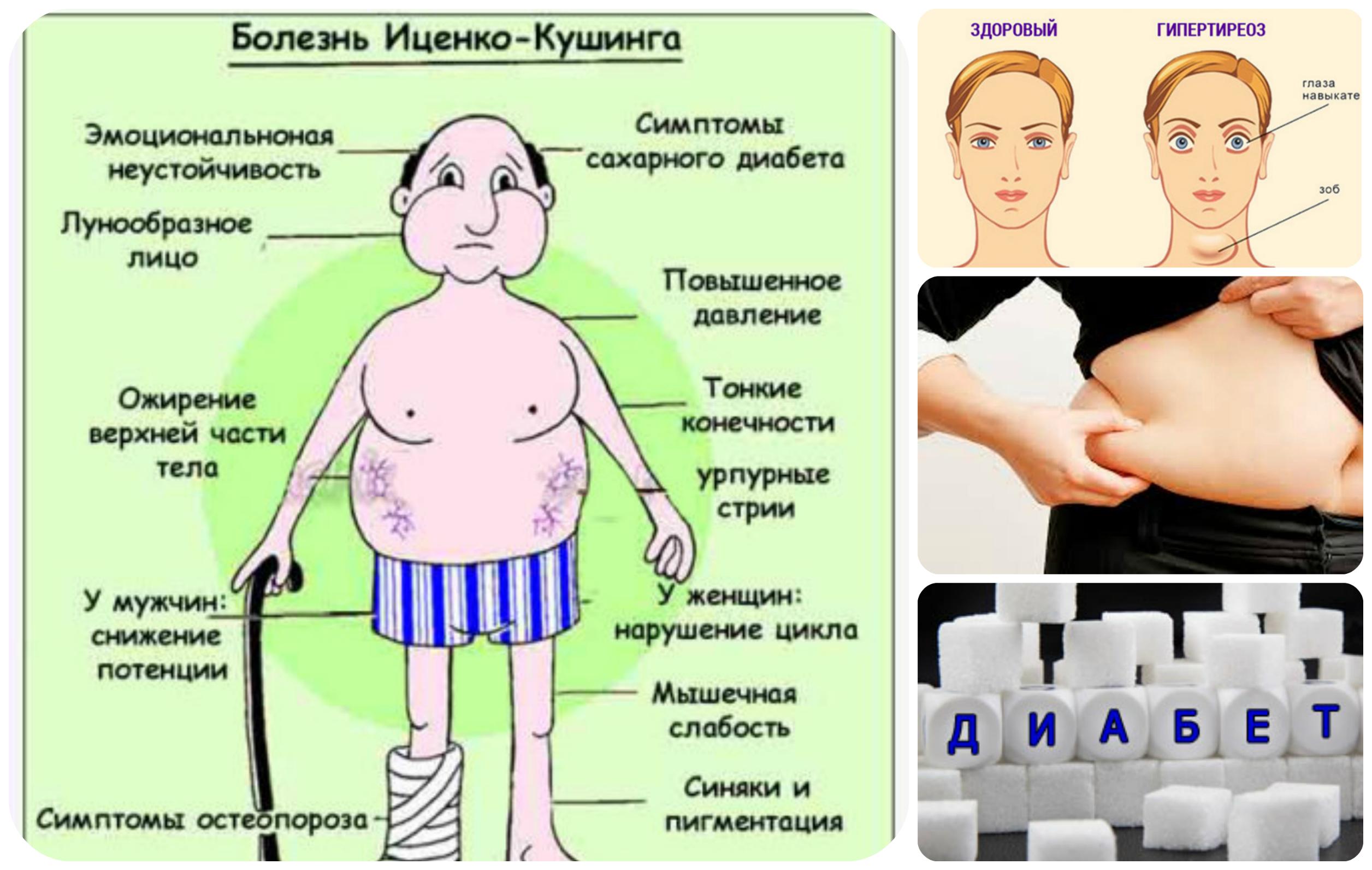 Повышен кортизол: причины у женщин, симптомы и лечение