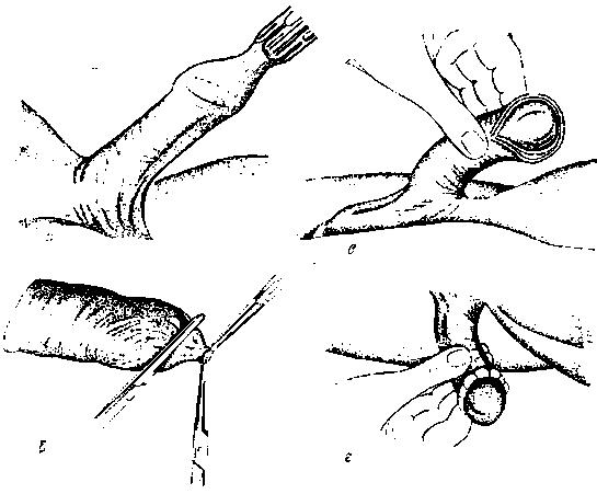 Парафимоз - симптомы  и лечение