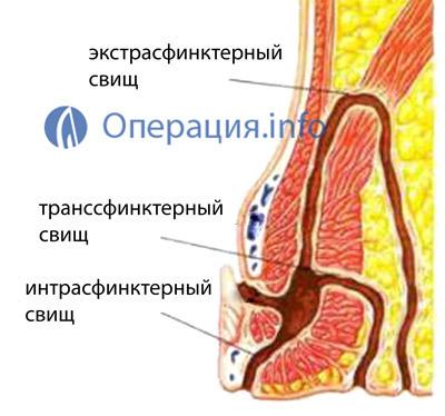 Как вылечить свищ (с иллюстрациями) - wikihow