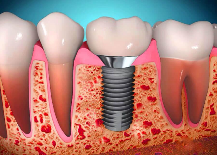 Скуловая имплантация зубов - что это, преимущества и особенности