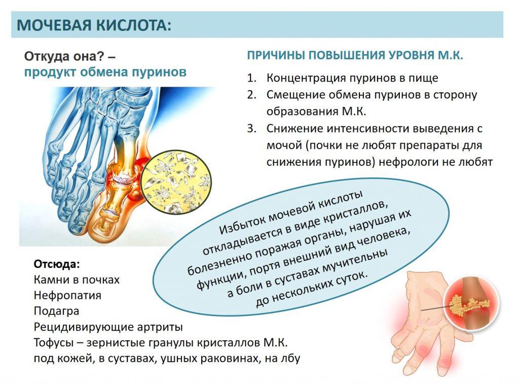 Анализ крови на мочевую кислоту: о чем говорит повышенное или пониженное содержание мочевой кислоты в крови