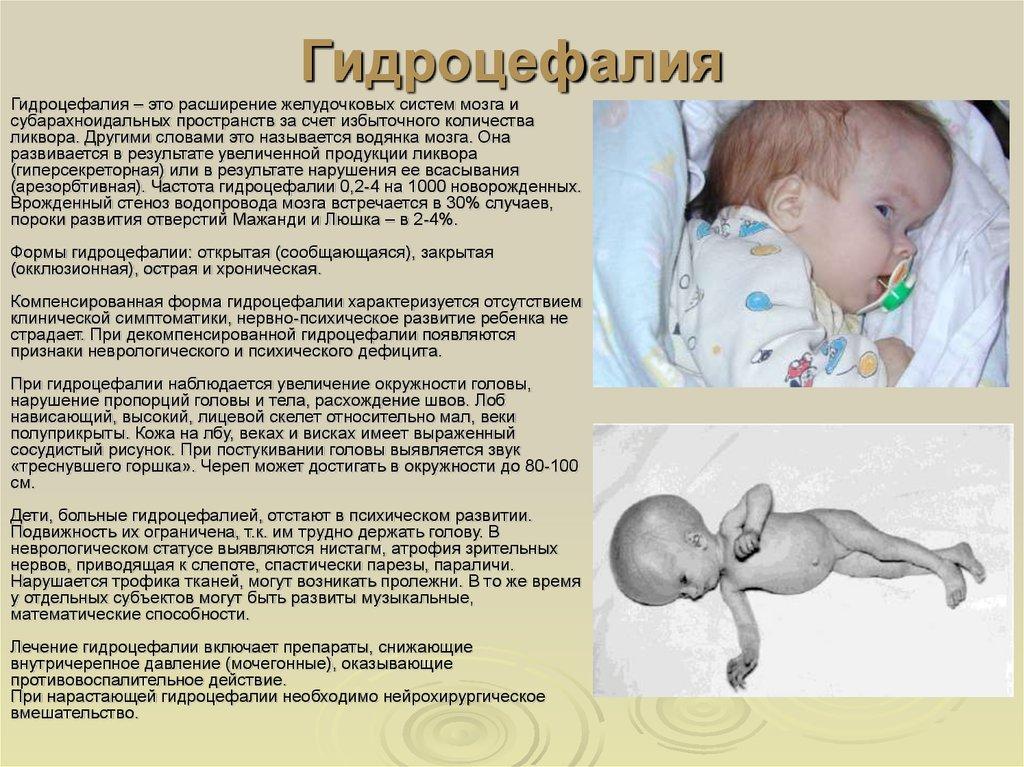 Гидроцефалия головного мозга у взрослого: что такое водянка, причины и лечение