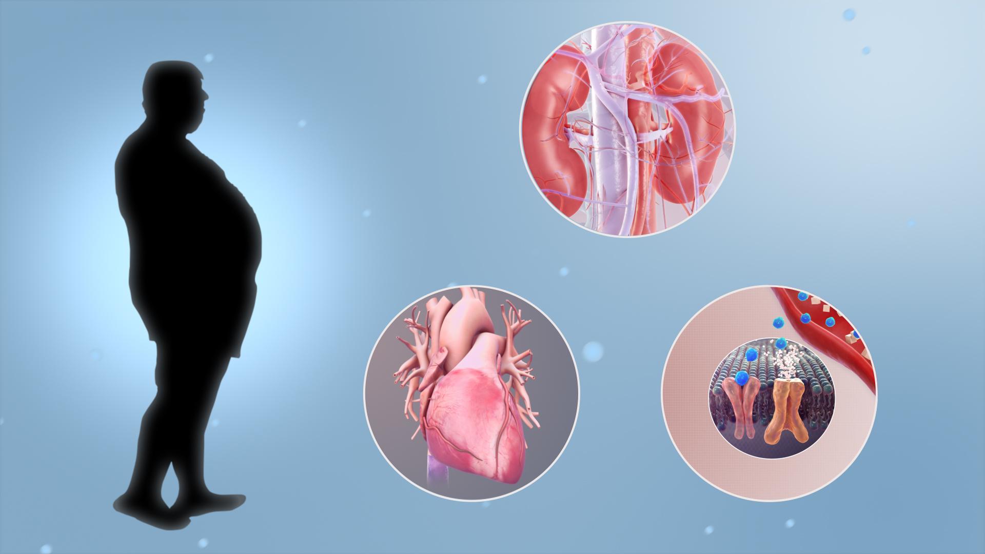 Метаболический синдром: как избавиться раз и навсегда?