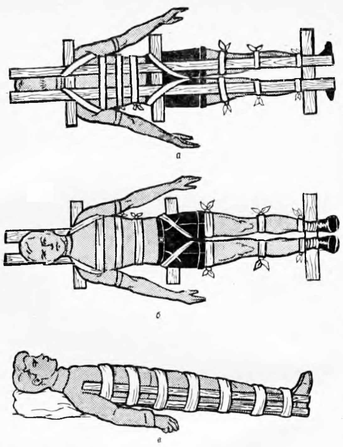 Иммобилизирующие повязки: виды и применение, техника наложения