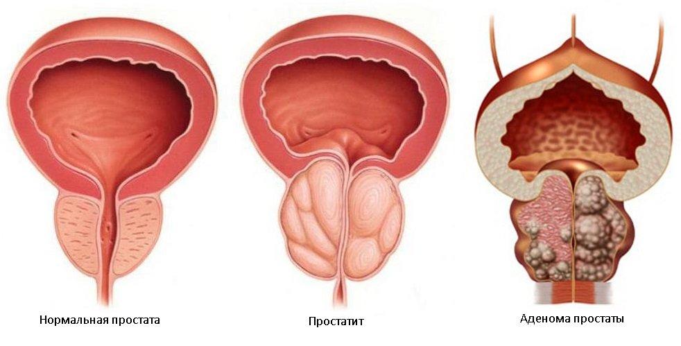 Лечение аденомы простаты народными средствами:самые эффективные рецепты и травы, как и чем лечить дгпж у мужчин | prostatitaid.ru