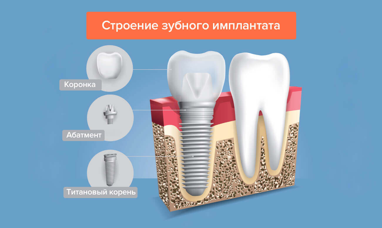 Абатмент: что это такое, как происходит установка при имплантации - виды с фото   spacream.ru