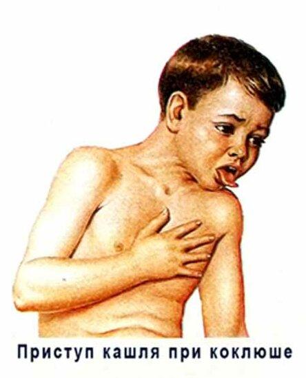Коклюш: диагностика, симптомы, лечение – напоправку
