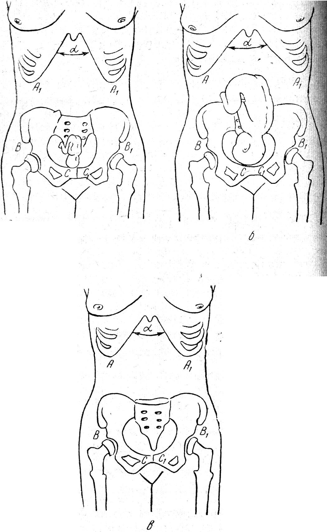 Симфизит во время беременности