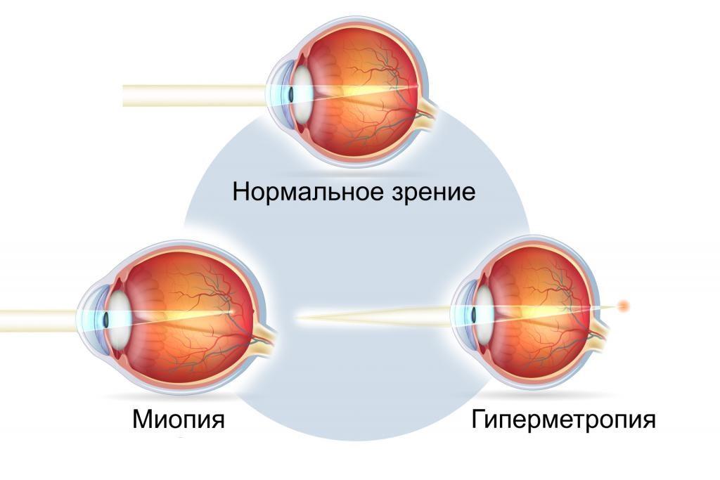 Дальнозоркость — википедия. что такое дальнозоркость