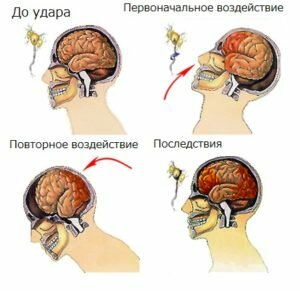 Лечение сотрясения головного мозга: что делать, как лечить?