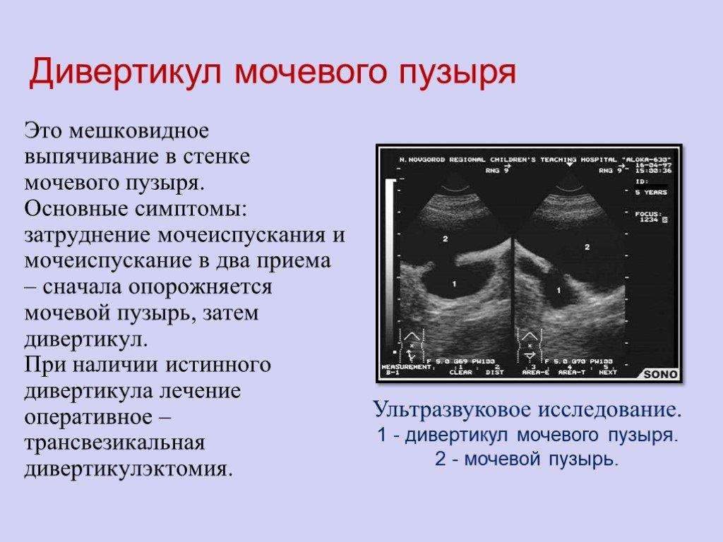 Дивертикул мочевого пузыря. дивертикулез. - симптомы и лечение. журнал медикал