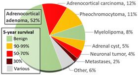 Феохромоцитома: что это такое, фото, симптомы и лечение