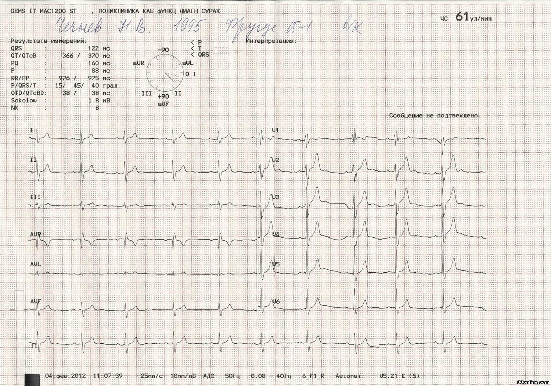 Расшифровка экг: норма и патология у взрослых и детей в таблице, что обозначают зубцы, сегменты и интервалы и как выглядит кардиограмма сердца здорового человека