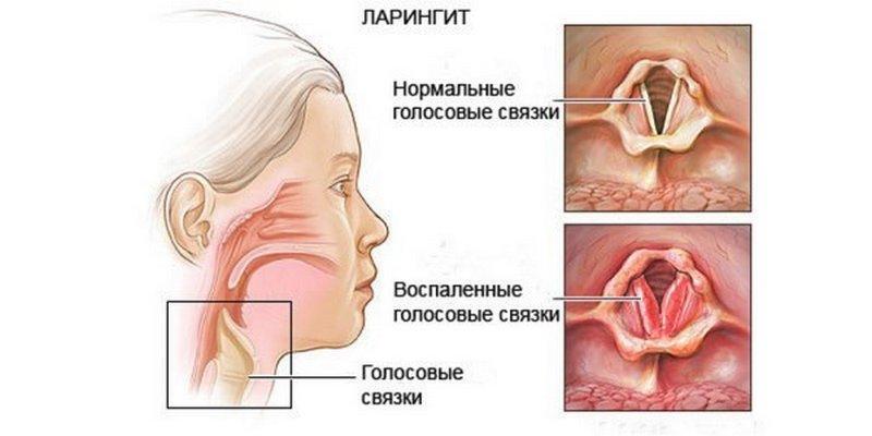 Что такое ларингит: признаки и симптомы лекторского ларингита, лечение воспаления гортани