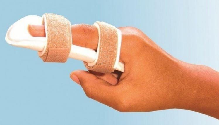 Лангетка на палец руки: описание, способы наложения, эффективность, фото
