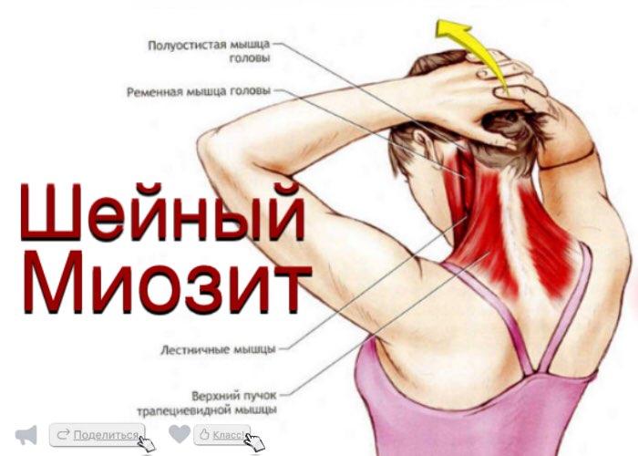 Миозит мышц спины: симптомы и лечение воспаления, массаж в домашних условиях