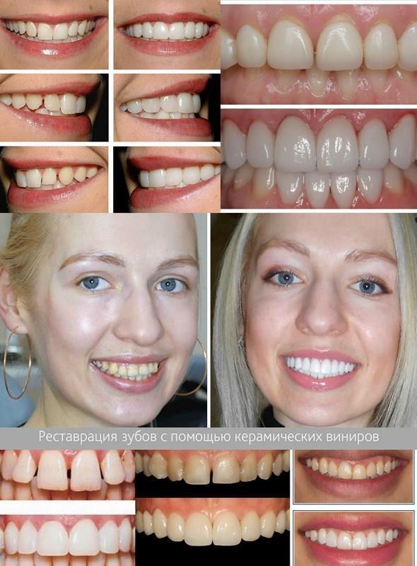 Виниры на зубы из керамики – фото до и после, отзывы в стоматологии